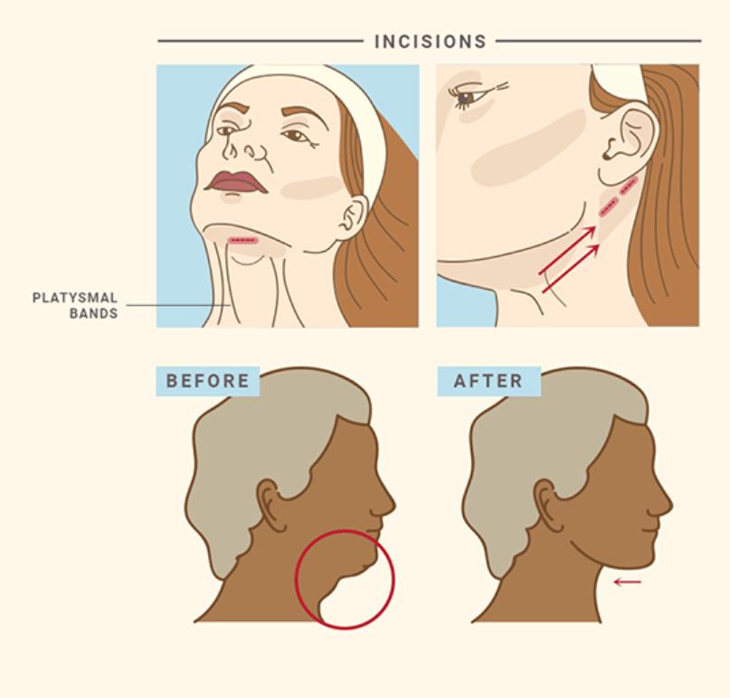 Dr.-Jhonny-Salomon-Neck-Lift-Surgery-