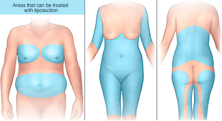 Dr.-Salomon-Areas-That-Can-Be-Treated-with-Liposuction