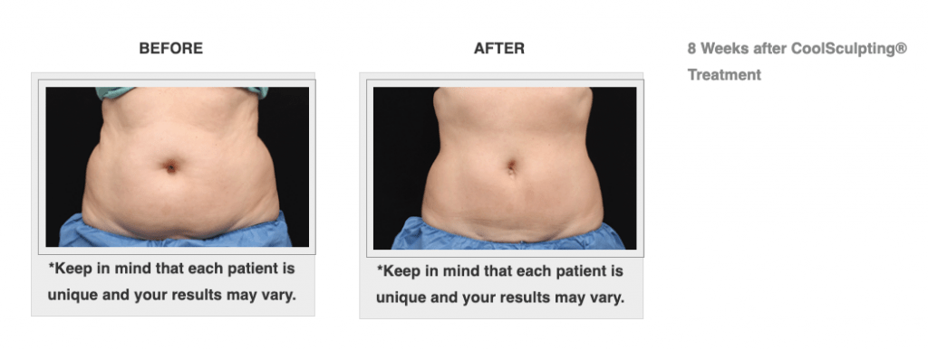 Dr.-Salomon-CoolSculpting-Before-and-After-1-1024x387