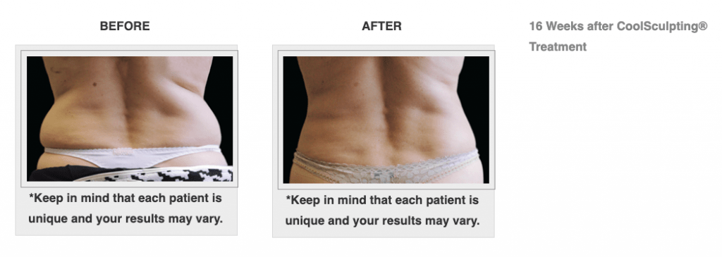 Dr.-Salomon-CoolSculpting-Before-and-After-2-1024x365
