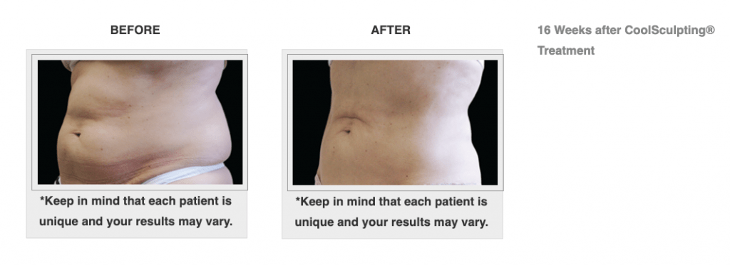 Dr.-Salomon-CoolSculpting-Before-and-After-3-1024x373