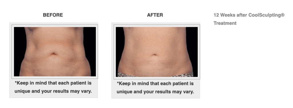 Dr.-Salomon-CoolSculpting-Before-and-After-4-1024x379