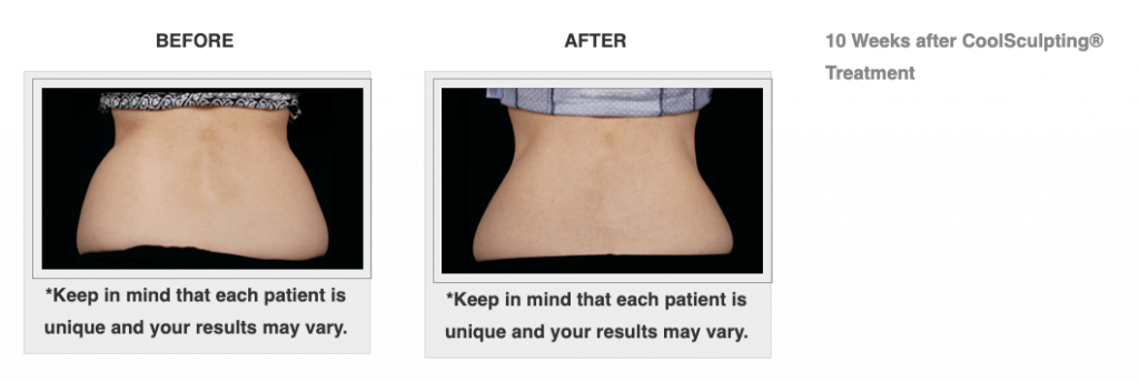 Dr.-Salomon-CoolSculpting-Before-and-After-5-1024x344