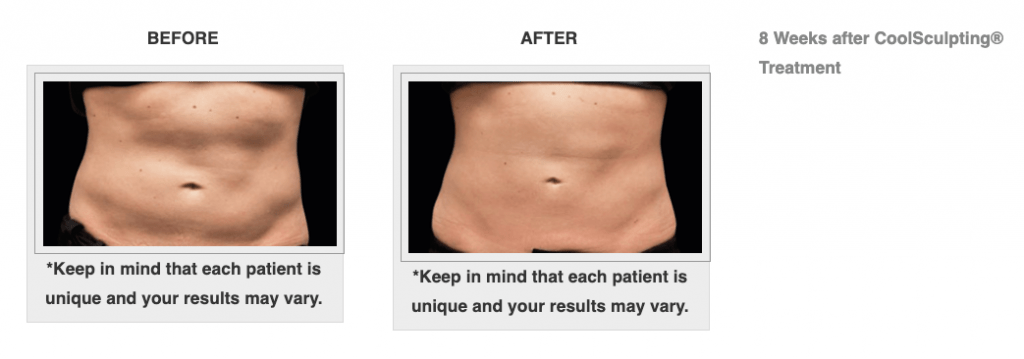 Dr.-Salomon-CoolSculpting-Before-and-After-6-1024x359