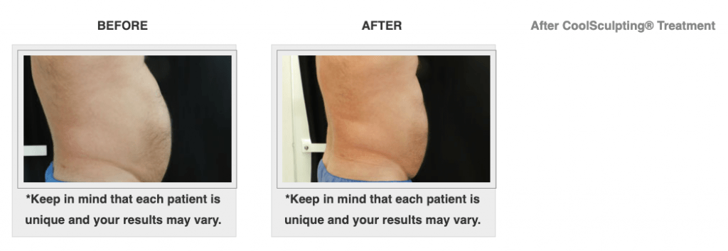 Dr.-Salomon-CoolSculpting-Before-and-After-7-1024x354