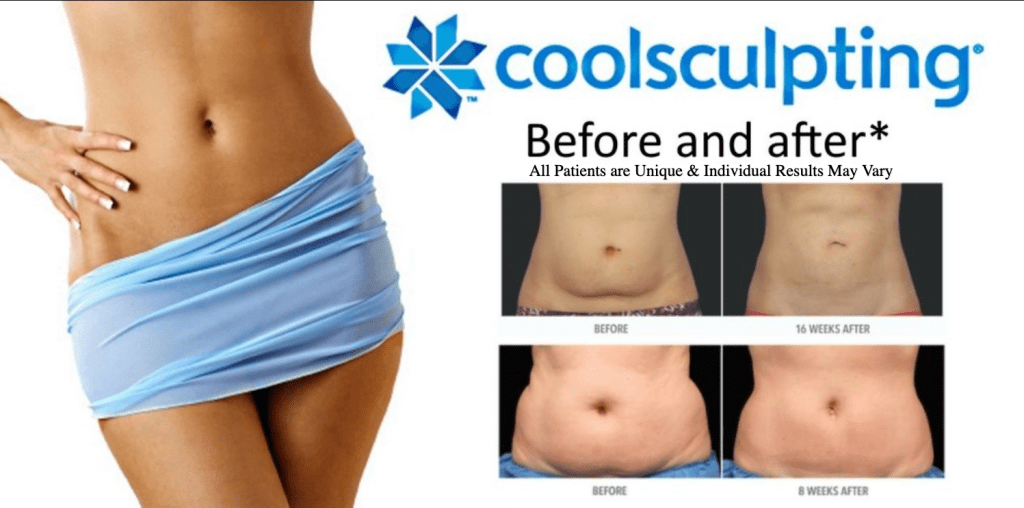 Dr.-Salomon-CoolSculpting-Before-and-After-Results-1024x508