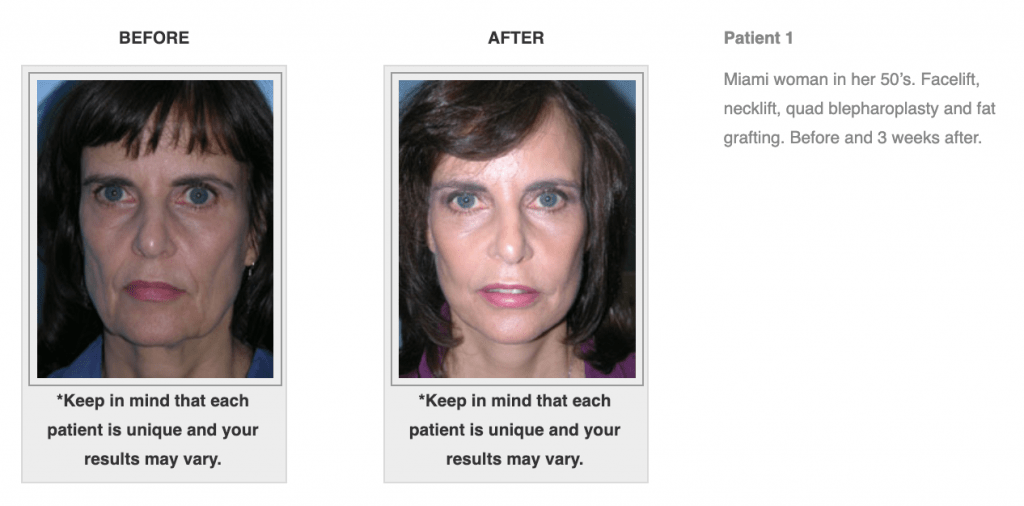 Dr.-Salomon-Neck-Lift-Before-and-After-Image-1-1024x506