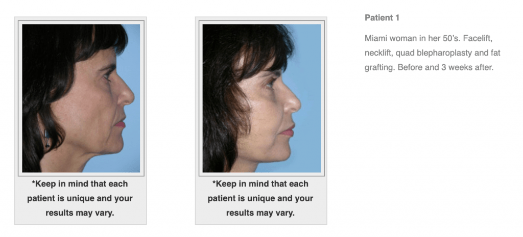 Dr.-Salomon-Neck-Lift-Before-and-After-Image-2-1024x465