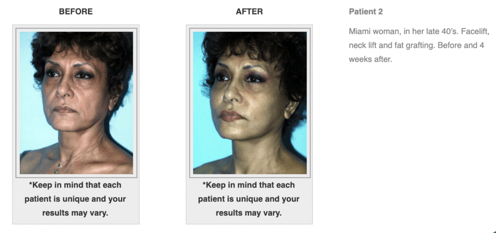 Dr.-Salomon-Neck-Lift-Before-and-After-Image-3-1024x482