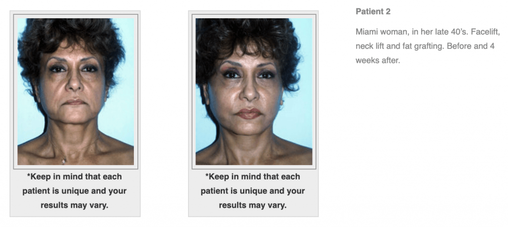 Dr.-Salomon-Neck-Lift-Before-and-After-Image-4-1024x459