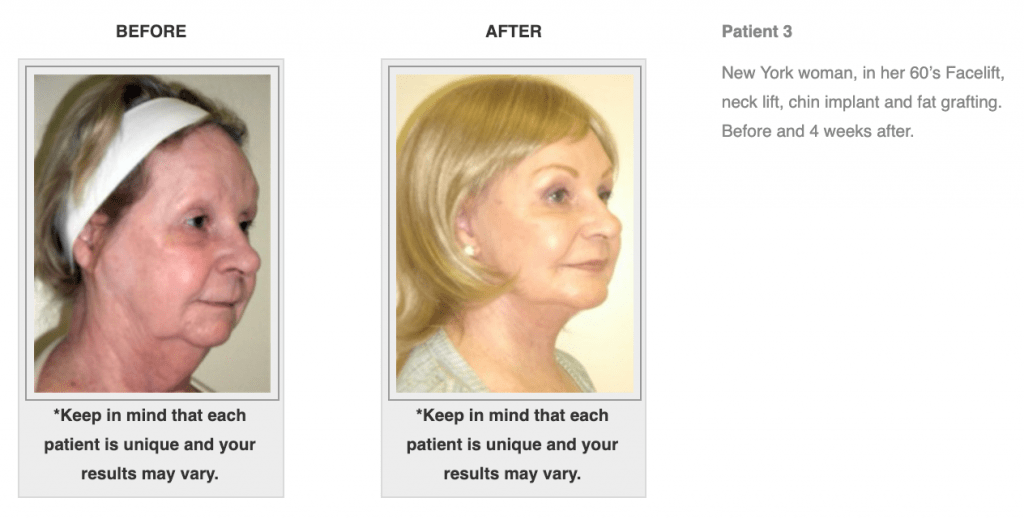 Dr.-Salomon-Neck-Lift-Before-and-After-Image-5-1024x519