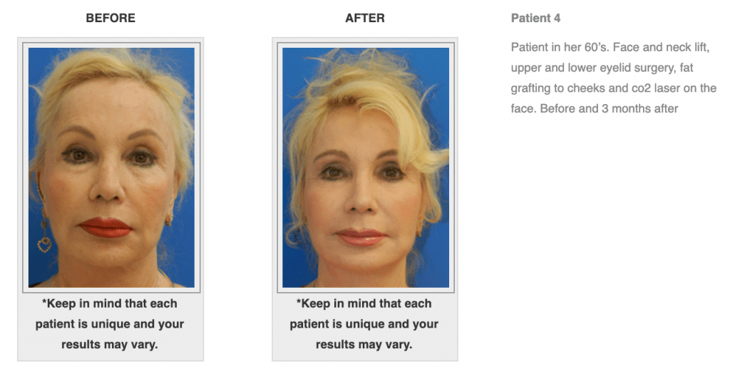 Dr.-Salomon-Neck-Lift-Before-and-After-Image-6-1024x525