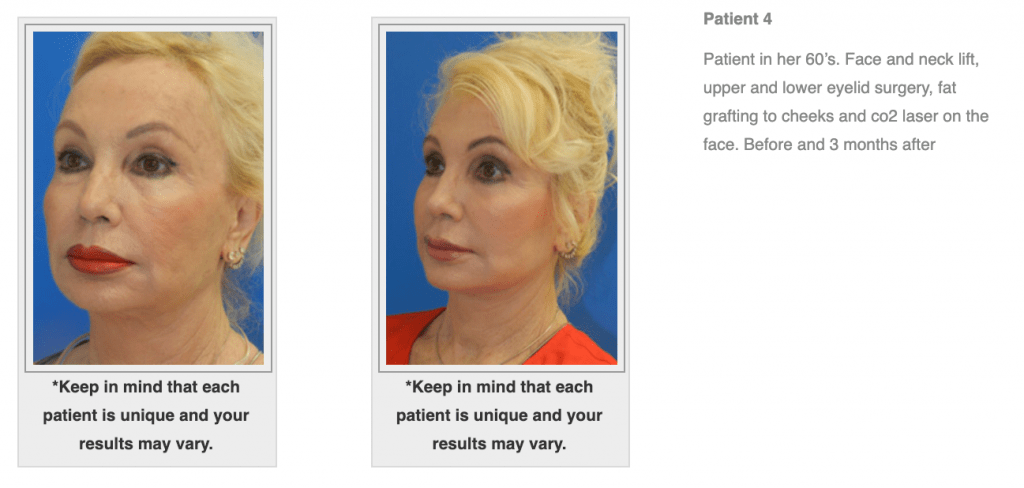 Dr.-Salomon-Neck-Lift-Before-and-After-Image-7-1024x488