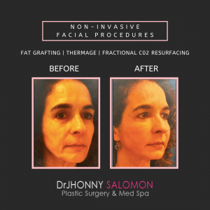 Dr-Salomon-Non-Ivasive-Facial-Procedures