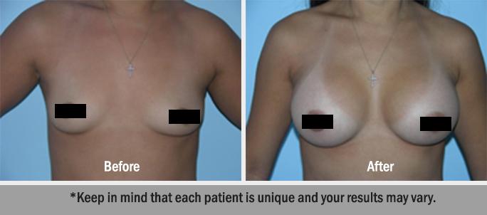 Breast Augmentation Dr. Salomon