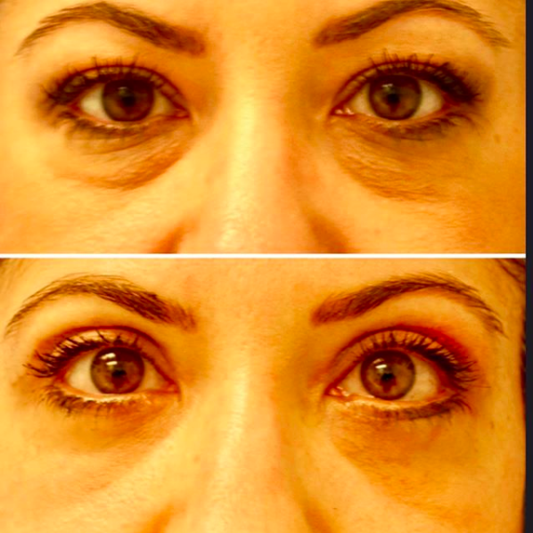 Dr Jhonny Salomon Blepharoplasty Before and After