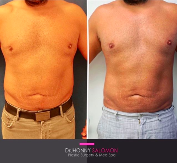 Liposuction and Fat Grafting Dr. Jhonny Salomon