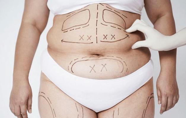 Dr-Salomon-Tummy-Tuck-Picture-1