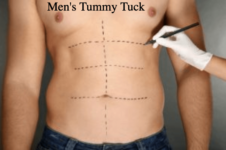 Dr-Salomon-Tummy-Tuck-Picture-3