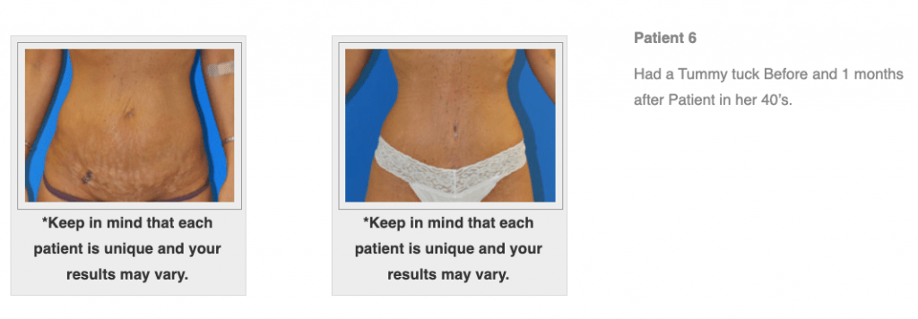Dr.-Salomon-Tummy-Tuck-Image-10-1024x356