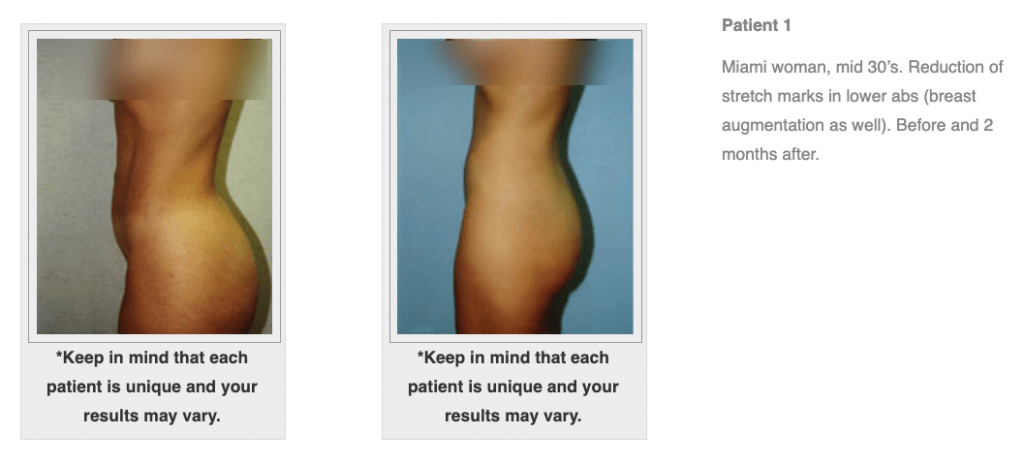 Dr.-Salomon-Tummy-Tuck-Image-2-1024x465