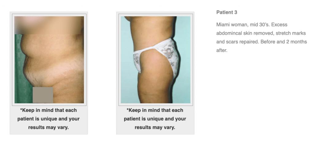Dr.-Salomon-Tummy-Tuck-Image-5-1024x460