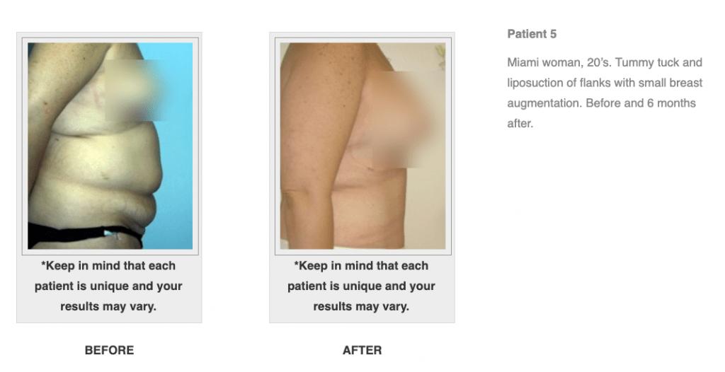 Dr.-Salomon-Tummy-Tuck-Image-7-1024x526