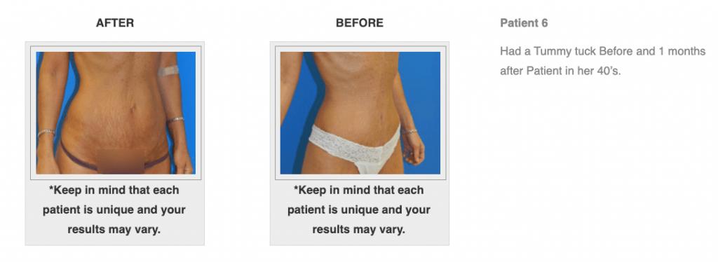 Dr.-Salomon-Tummy-Tuck-Image-9-1024x374