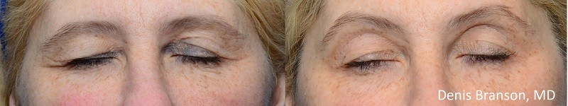 ThermiSmooth - DB eyes before and after