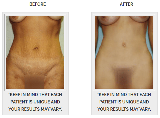 before and after tummy tuck