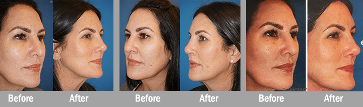 Miami Florida Plastic Surgery and Med Spa Revision Rhinoplasty Dr Jhonny Salomon