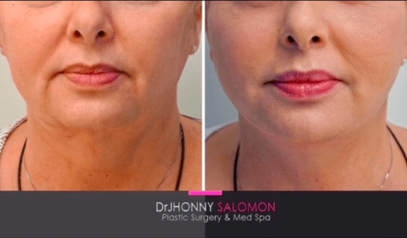 2 weeks before and after Dr. J Salomon Face and Neck Lift Miami Plastic Surgeon