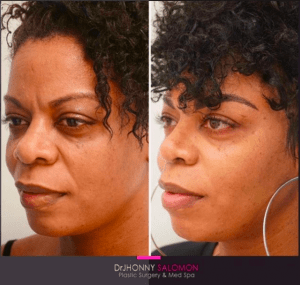 Ethnic Revision Rhinoplasty Before and After Dr. J Salomon Plastic Surgery and Med Spa Miami Florida
