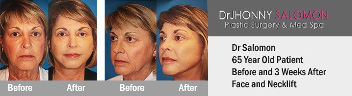 Dr. Jhonny Salomon face and neck lift miami