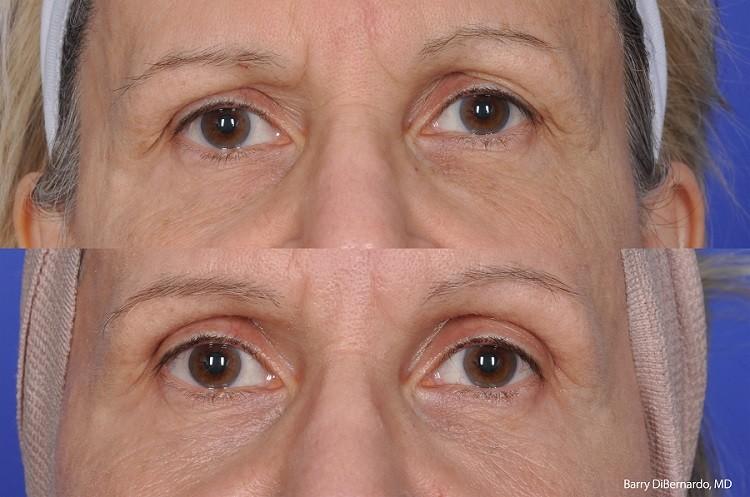 Dr. Jhonny Salomon Thermi RF - ThermiVa - ThermiTight - Non-Siurgical Procedures